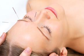 Acupuncture esthétique